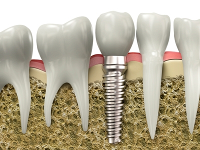 Desert-Dental-Specialists-photo-dental-implant-cross-section