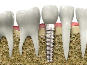 Desert-Dental-Specialists-photo-dental-implant-cross-section